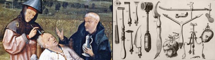 bild-trepanation